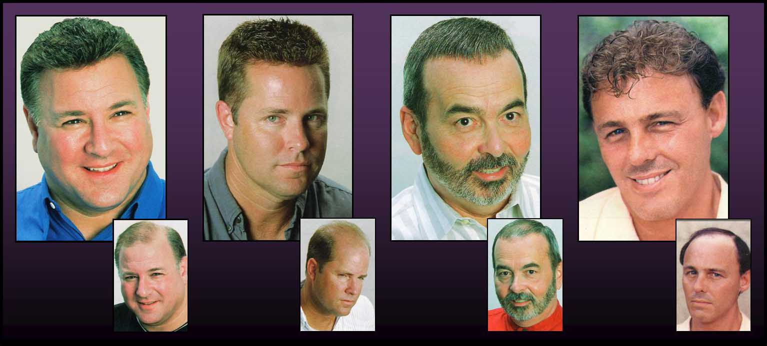 Hair Worx Salon Hair Replacement Studio